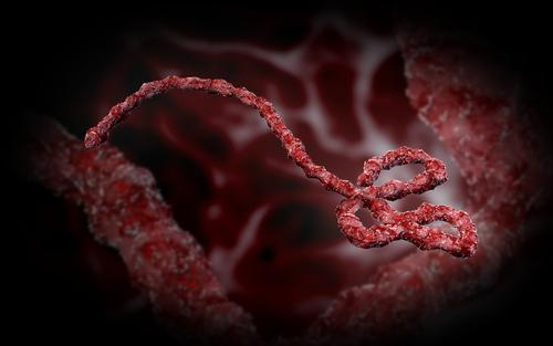 ebola causes symptoms and treatment Ebola virus: everything you need to know, facts, symptoms, how can one get infected, treatment, prevention, zmapp for treating ebola virus and.
